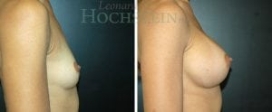 Breast Augmentation Patient 225 before and after facing right.