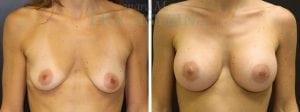 Breast Augmentation Patient 226 before and after facing forward.