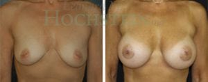 Breast Augmentation Patient 104 before and after facing forward.