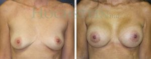 Breast Augmentation Patient 105 before and after facing forward.