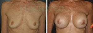 Breast Augmentation Patient 106 before and after facing forward.