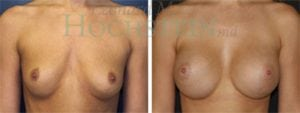 Breast Augmentation Patient 108 before and after facing forward.
