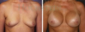 Breast Augmentation Patient 109 before and after facing forward.