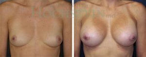 Breast Augmentation Patient 117 before and after facing forward.