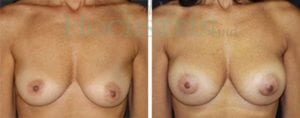 Breast Augmentation Patient 118 before and after facing forward.
