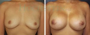 Breast Augmentation Patient 119 before and after facing forward.