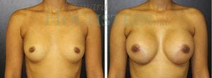 Breast Augmentation Patient 120 before and after facing forward.