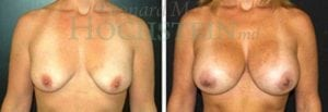 Breast Augmentation Patient 122 before and after facing forward.