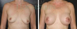 Breast Augmentation Patient 125 before and after facing forward.