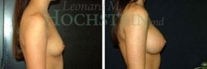 Breast Augmentation Patient 126 before and after facing right.