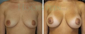Breast Augmentation Patient 128 before and after facing forward.