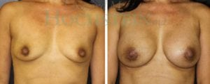 Breast Augmentation Patient 132 before and after facing forward.