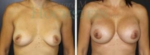 Breast Augmentation Patient 137 before and after facing forward.