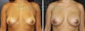 Breast Augmentation Patient 140 before and after facing forward.