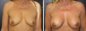 Breast Augmentation Patient 143 before and after facing forward.