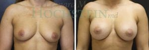 Breast Augmentation Patient 144 before and after facing forward.
