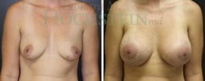 Breast Augmentation Patient 147 before and after facing forward.