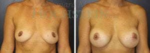 Breast Augmentation Patient 166 before and after facing forward.