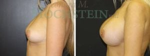 Breast Augmentation Patient 169 before and after facing left.