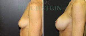 Breast Augmentation Patient 171 before and after facing left.