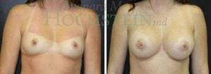 Breast Augmentation Patient 172 before and after facing forward.