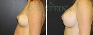 Breast Augmentation Patient 172 before and after facing left.