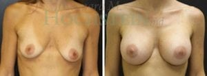 Breast Augmentation Patient 173 before and after facing forward.