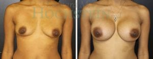 Breast Augmentation Patient 183 before and after facing forward.