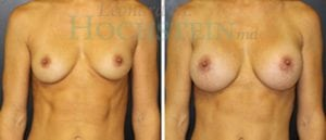 Breast Augmentation Patient 186 before and after facing forward.