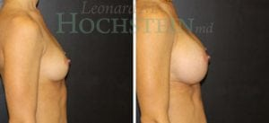 Breast Augmentation Patient 186 before and after facing right.