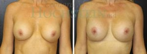 Breast Augmentation Patient 192 before and after facing forward.