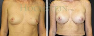 Breast Augmentation Patient 199 before and after facing forward.