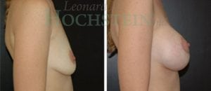 Breast Augmentation Patient 42 before and after facing right.