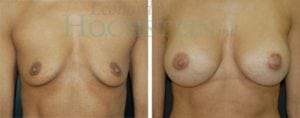 Breast Augmentation Patient 68 before and after facing forward.