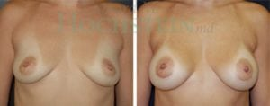 Breast Augmentation Patient 74 before and after facing forward.