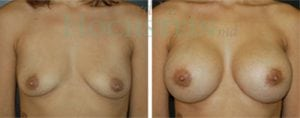 Breast Augmentation Patient 82 before and after facing forward.