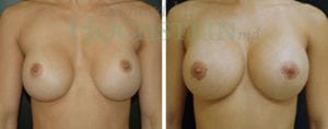 Breast Augmentation Patient 92 before and after facing forward.