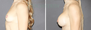 Breast Augmentation Patient 230 before and after facing left.