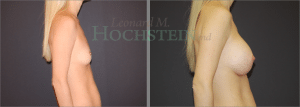 Breast Augmentation Patient 233 before and after facing right.