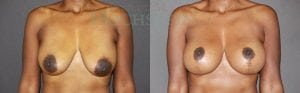 Breast Lift Patient 05 before and after facing forward.