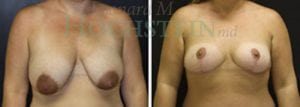 Breast Lift Patient 120 before and after facing forward.