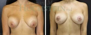 Breast Lift Patient 124 before and after facing forward.