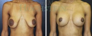 Breast Lift Patient 128 before and after facing forward.