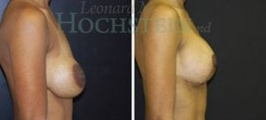 Breast Lift Patient 128 before and after facing right.
