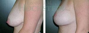 Breast Lift Patient 30 before and after facing left.