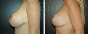 Breast Lift Patient 56 before and after facing left.