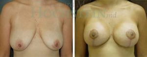 Breast Lift Patient 57 before and after facing forward.