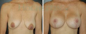 Breast Lift Patient 61 before and after facing forward.