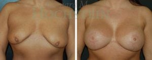 Breast Lift Patient 62 before and after facing forward.