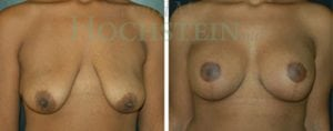 Breast Lift Patient 75 before and after facing forward.
